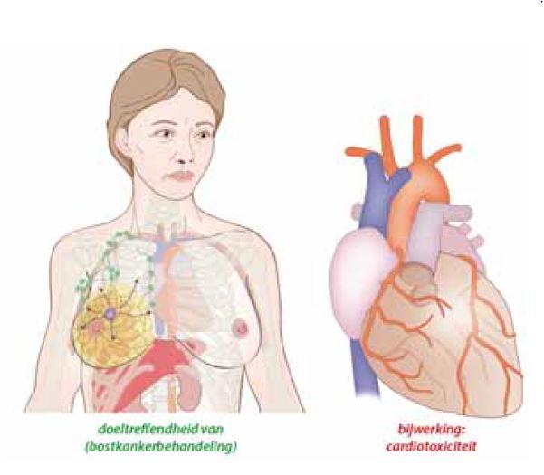 Cardiovasculaire toxiciteit bij behandeling van borstkanker