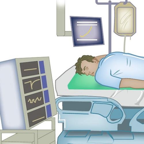 Buikligging bij COVID-19-patiënten tijdens invasieve beademing
