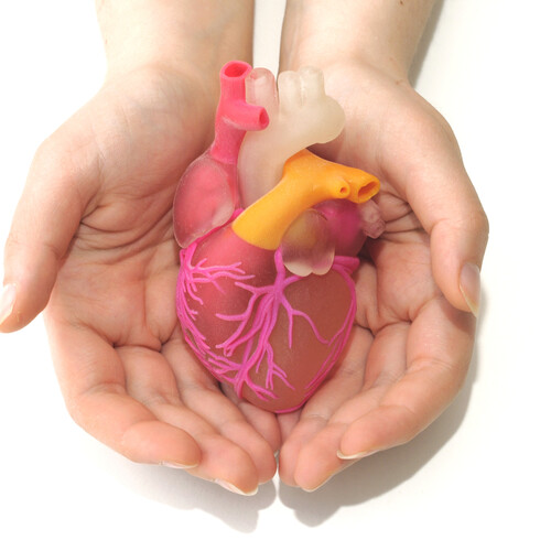 Acuut myocardinfarct
