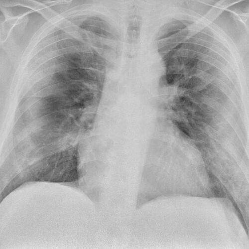 Trombose bij COVID-19-infectie